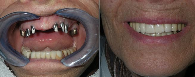 Implant Reconstruction