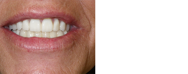 Complete And Removeable Dentures