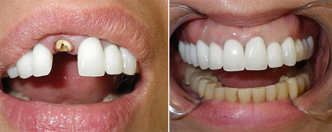 dental implant‏