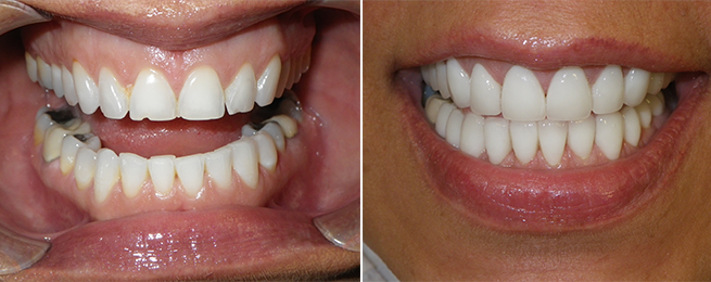 porcelain veneers‏